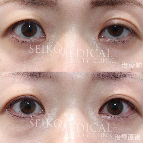 眼瞼下垂症の患者様