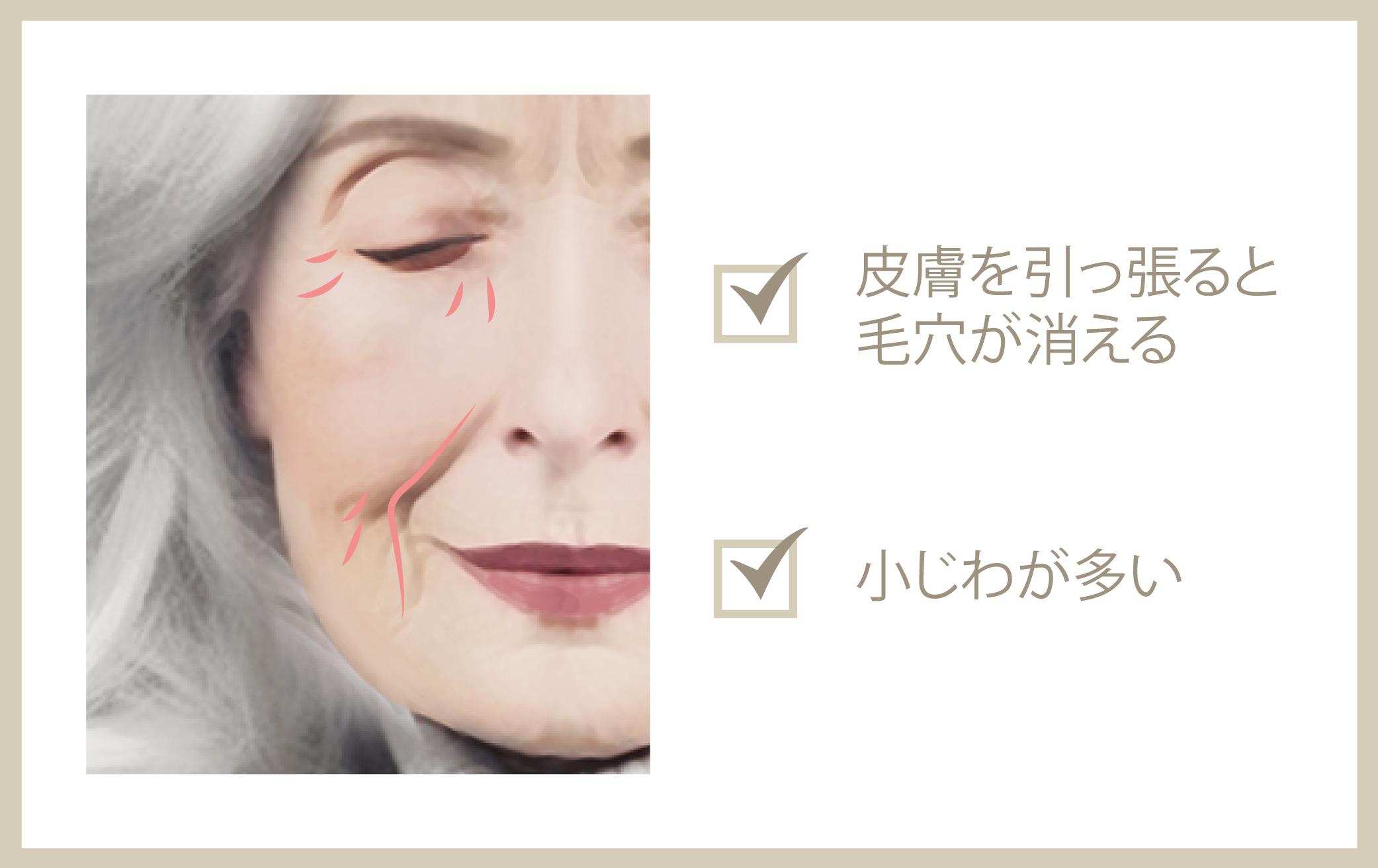 皮膚のたるみ
