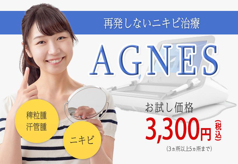 再発しないニキビ治療AGNESお試し価格3000円稗粒腫汗管腫ニキビ