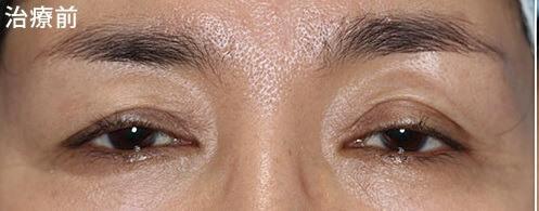 切らない眼瞼下垂修正法 ノーマル 二重術