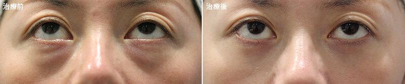 下瞼の膨らみが気になる方に対して、脂肪だけを取った症例