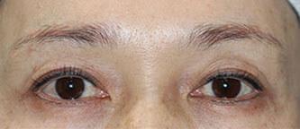 上瞼の治療を2つ行って、劇的に若返った症例