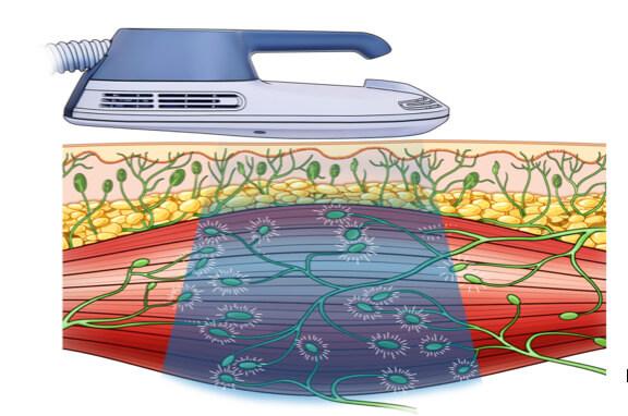 筋肉と脂肪に作用する痩身治療器【エムスカルプト emsculpt】の解説