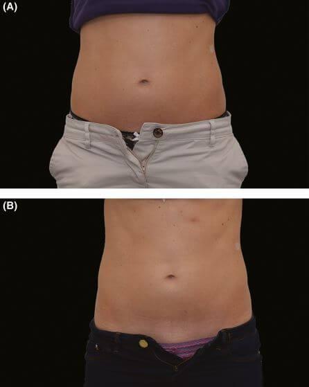痩身治療器【エムスカルプト emsculpt】の臨床研究や論文について パート1