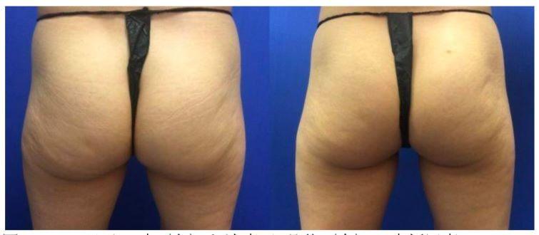 痩身治療器【エムスカルプト emsculpt】の臨床研究や論文について パート2