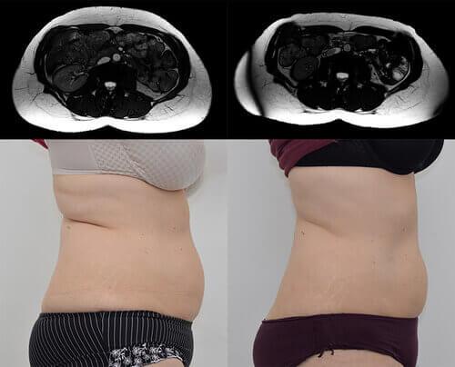 痩身治療器【エムスカルプト emsculpt】の臨床研究や論文について パート3