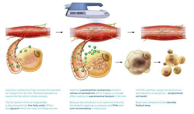 痩身治療器【エムスカルプト emsculpt】の臨床研究や論文について パート4