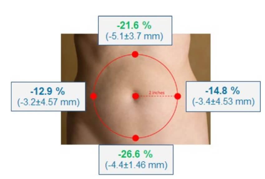 痩身治療器【エムスカルプト emsculpt】の臨床研究や論文について パート5