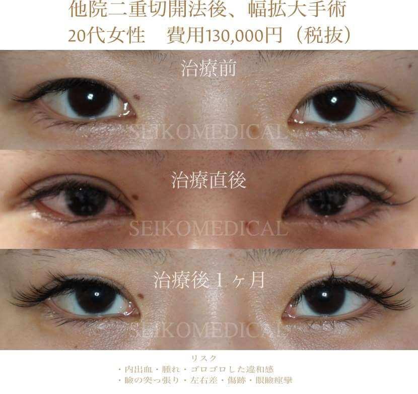他院で二重切開法、眼瞼下垂治療後、幅を拡大した二重の症例