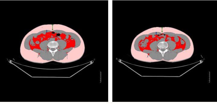 【エムスカルプト結果編】筋肉は2割増加し、皮下脂肪は2割減りました!