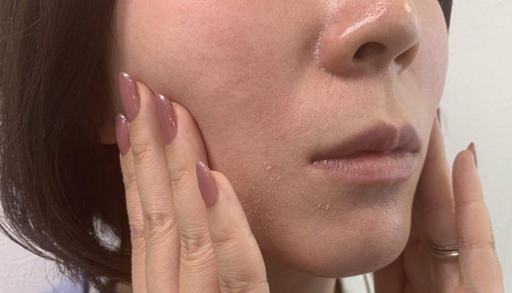 イメージ写真 顔のたるみについての相談では、ほぼ必ず患者さんは、このようになりたいとご自身で皮膚を持ち上げます。