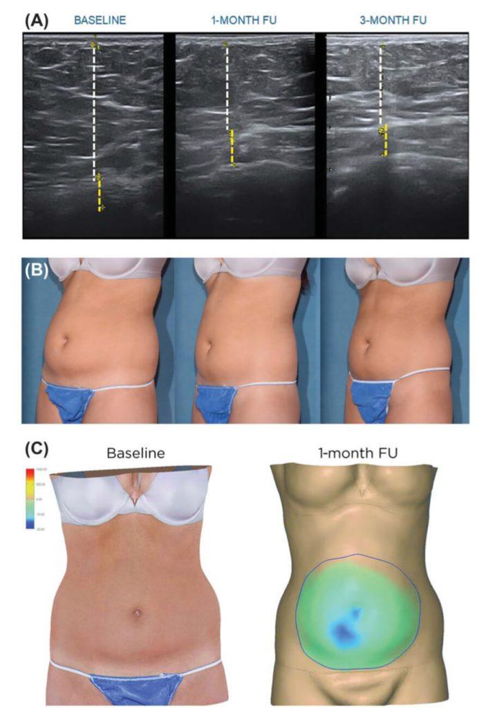 痩身治療器エムスカルプト emsculpt の臨床研究や論文について パート6