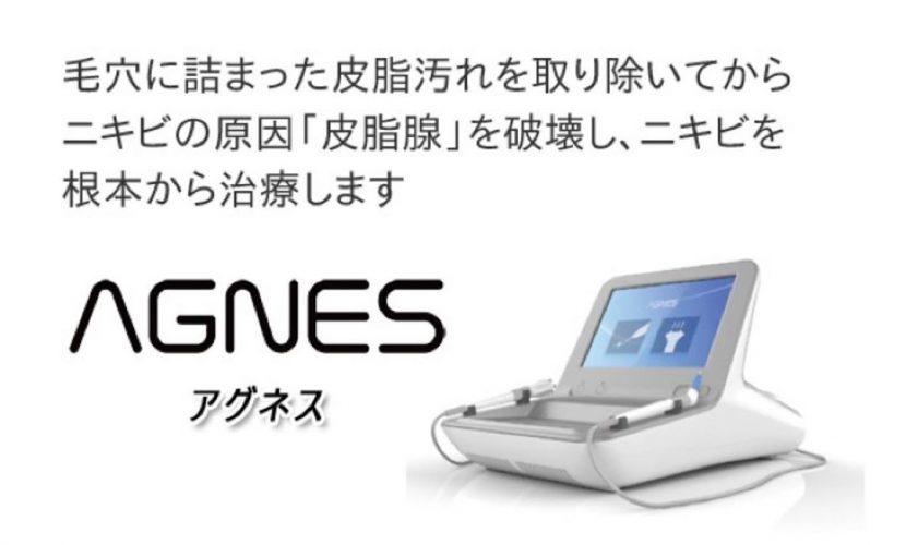 AGNES(アグネス)