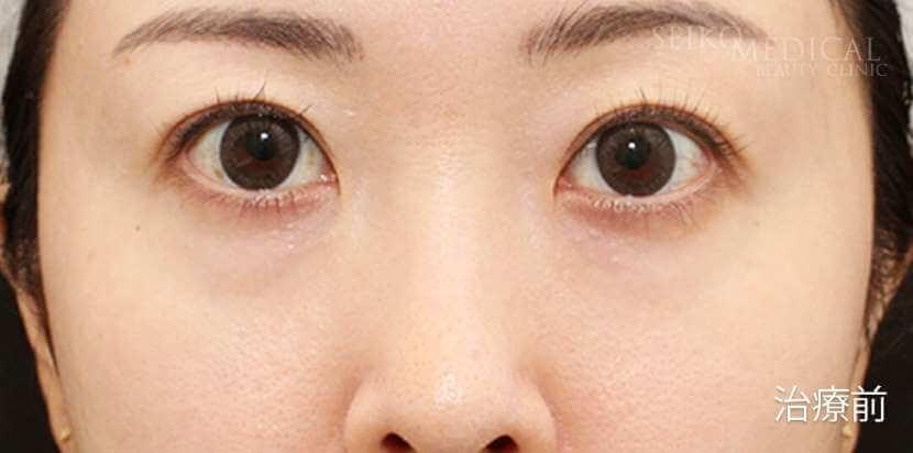 【下眼瞼の脂肪除去、脂肪(マイクロファット、ナノファット)注入】モニターさん症例解説