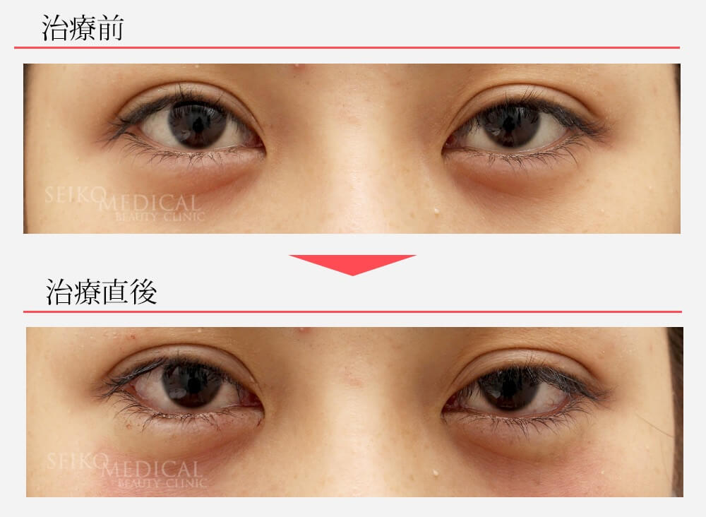 20代女性、垂れ目形成術(下眼瞼下制術、グラマラスライン)の直後の症例解説