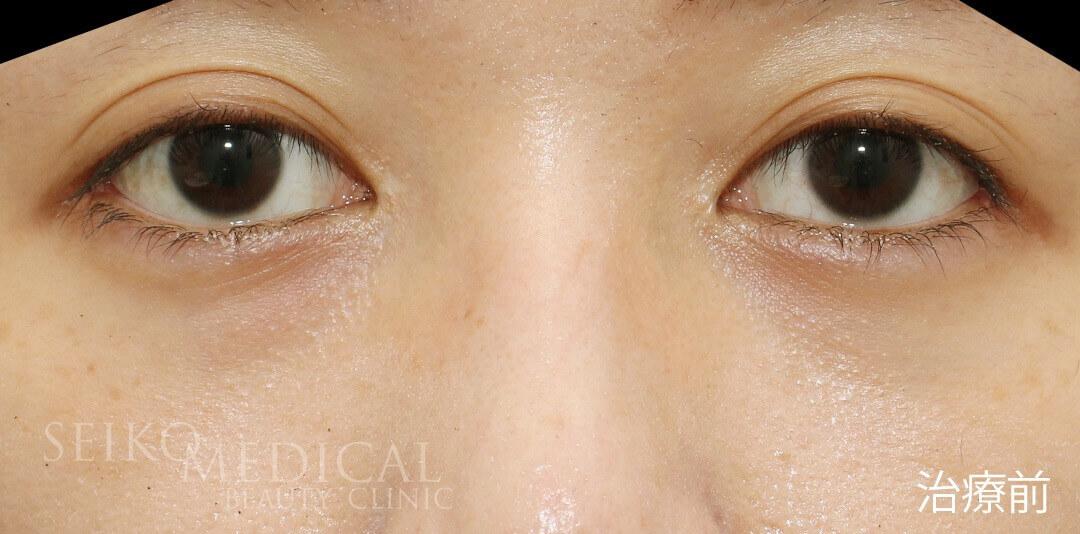 30代女性、たれ目形成術(下眼瞼下制術、グラマラスライン)の直後の症例解説