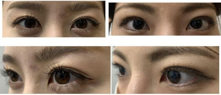 綺麗な目にするため、メイクをしたようにたれ目形成術を行っています。