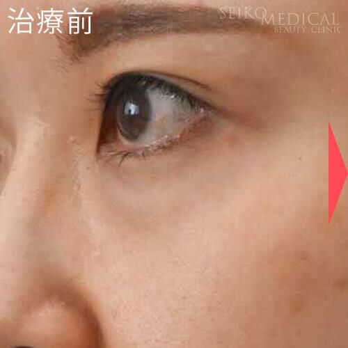 【下眼瞼のクマ】裏ハムラ法モニターさん症例解説