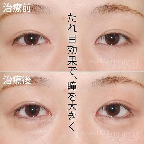 左右差のあるつり目を「たれ目形成術」で改善した症例解説