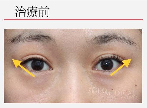 【たれ目形成術の症例解説】自然な形でしっかりと引き下げています。