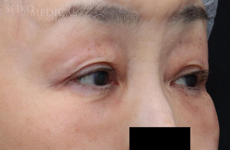 【下眼瞼のクマ、たるみ】下眼瞼脱脂、脂肪注入、皮膚切除の症例解説