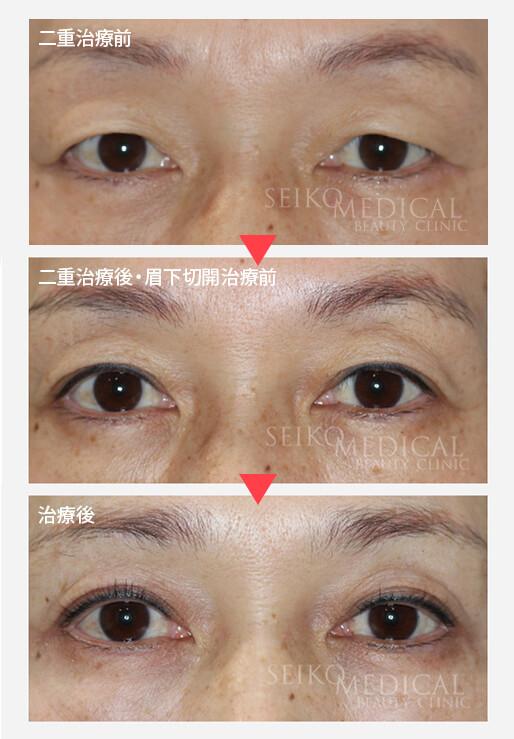 【上まぶたのたるみ】眉下切開の傷痕の長期経過について