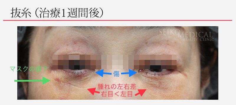 【下眼瞼のクマ、たるみ】下まぶたを切開したときの傷痕の経過