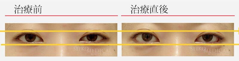 【たれ目形成術(グラマラスライン)の症例解説】左右差を整える形で行った症例