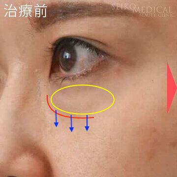 【下眼瞼のクマ、たるみ】裏ハムラ法の術後の腫れの経過写真