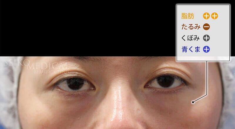 【下眼瞼のクマ、たるみ】脱脂?ハムラ法?裏ハムラ法?脂肪注入?どの治療方法が適しているか