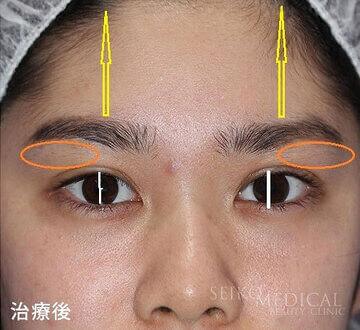 皮膚を切らずに直後から自然に目が開く【切らない眼瞼下垂】治療について
