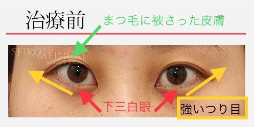 【たれ目形成術(グラマラスライン)、二重埋没法の症例解説】つり目の改善、動画あり。