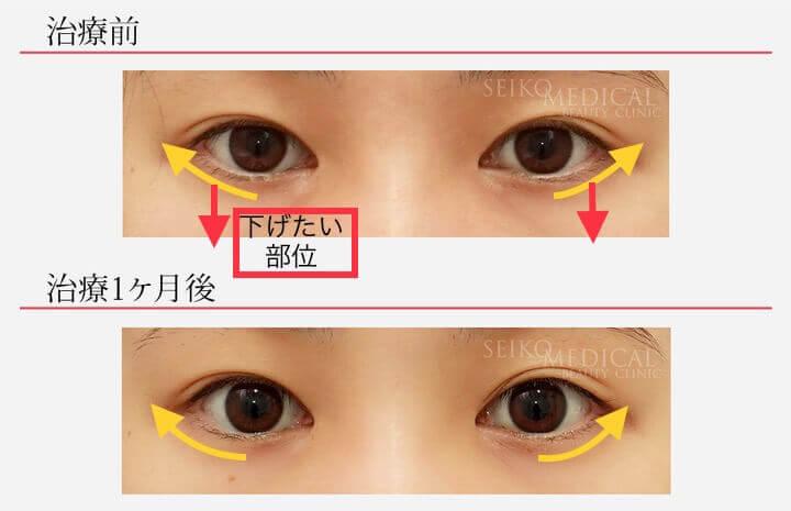 【たれ目形成術(グラマラスライン)】治療1ヶ月後の経過
