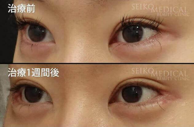 【目尻靱帯移動術、目尻切開、たれ目形成術(グラマラスライン)】1週間後までの経過