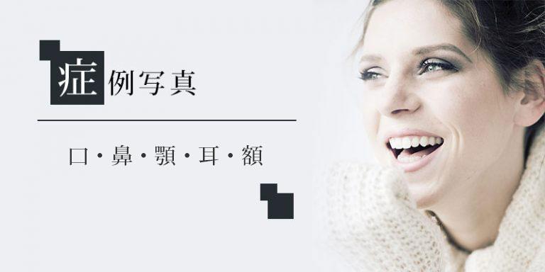 口・鼻・顎・耳・額 症例写真