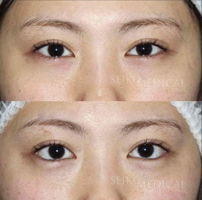 切らないたれ目形成術の症例