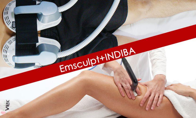 エムスカルプト、オプションのインディバに新価格登場