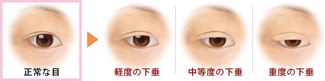 眼瞼下垂のレベル
