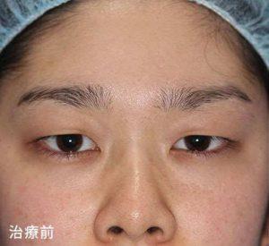 眼瞼下垂修正法