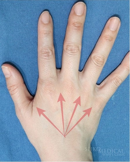 手の甲ヒアルロン酸注入