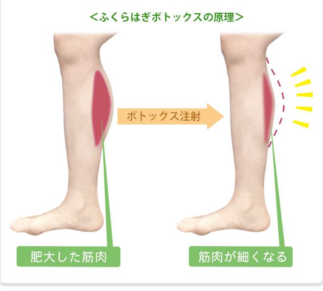 肥大した筋肉が細くなる