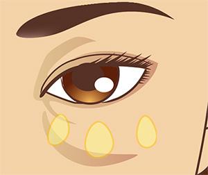 下眼瞼の脂肪除去の症例解説(目の下のくま)