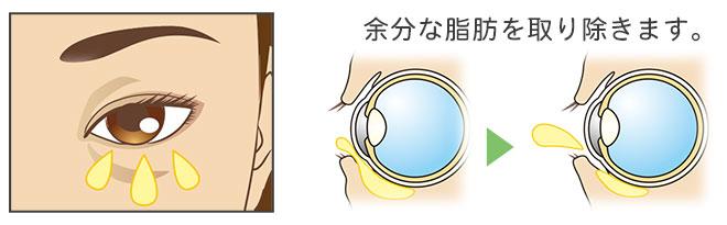 下眼瞼脂肪除去の治療方法