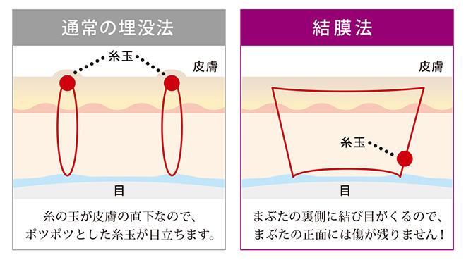 通常の埋没法は糸の球が皮膚の直下なので、ボツボツとした糸球が目立ちます。結膜法は、まぶたの裏側に結び目がくるので、まぶたの正面には傷痕が残りません。