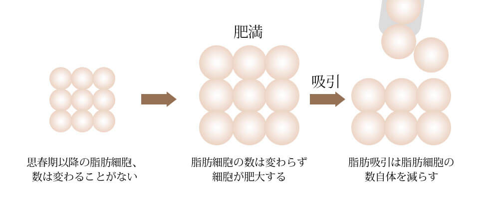 脂肪吸引で脂肪細胞の数自体を減らします