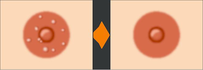 モントゴメリー腺除去 施術前 施術後