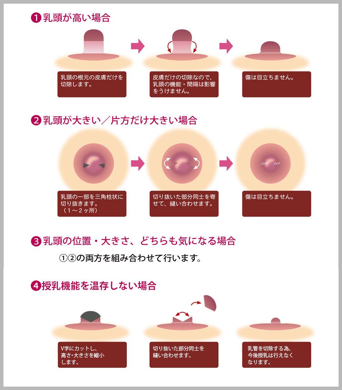 乳頭のケース