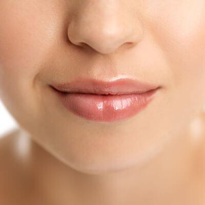 唇ふっくらヒアルロン酸注入
