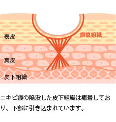 ニキビ痕の陥没した皮下組織は癒着しており、下部に引き込まれています。