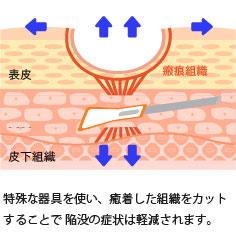 ニキビ痕のクレーターへのサブシジョン